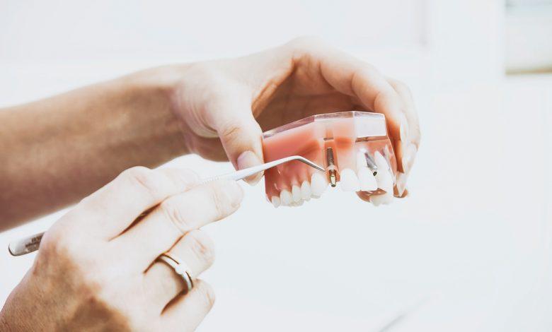 השתלות שיניים עם שיקום מיידי