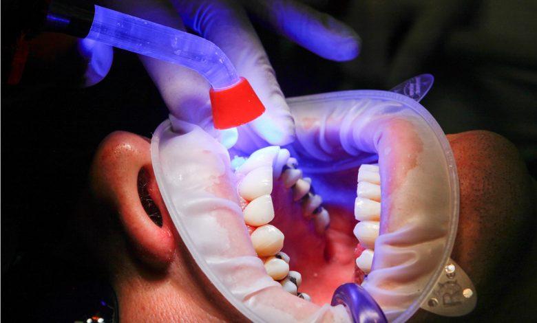 טיפול שורש אצל מומחה יכול להציל את השן ולמנוע כאבי שיניים