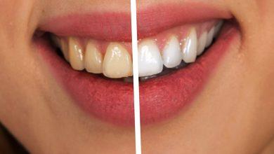 איזה הלבנת שיניים הכי טובה?