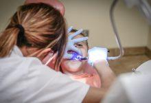 טיפולי שיניים עם גז צחוק